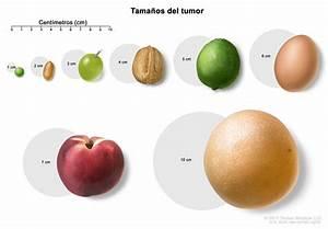 6 3 In Cm : tratamiento de los tumores de hip fisis pdq versi n ~ Dailycaller-alerts.com Idées de Décoration