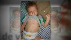 Comment Tuer Les Puces : punaises de lit montreal comment tuer ces punaises de lit ~ Farleysfitness.com Idées de Décoration