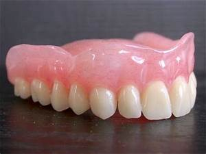 Cover Denture Prothese Abrechnung : proth se dentaire amovible ~ Themetempest.com Abrechnung
