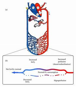 Capillary Svo2 And Perfusion   A  Schematic Representation