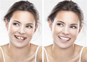 Philadelphia Invisalign Braces | Invisible Clear Aligners ...