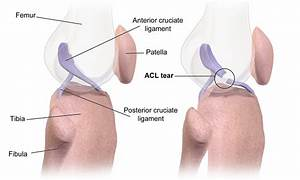 Recently I Had An Mri And Was Told I Have A Torn Acl At