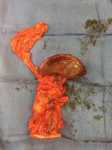 Award Winning Pancreatic Tumors Treatment