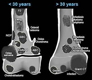 Pathology Outlines - Bone Forming Tumors
