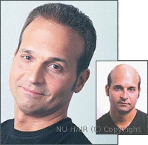 Hair Implants Fort Worth Tx 76109 Hair Loss Treatment Center Dallas Fort Worth