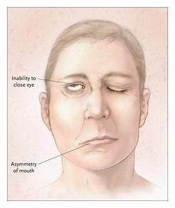 How Serious Is Bells Palsy