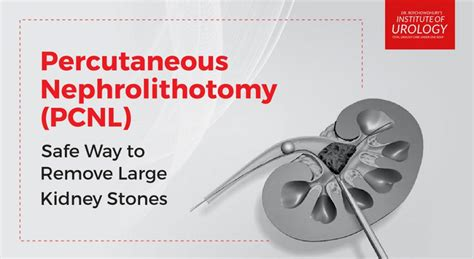 percutaneous nephrolithotomy institute  urology