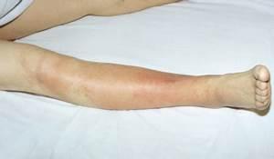 Лечение рожи на ноге при диабете