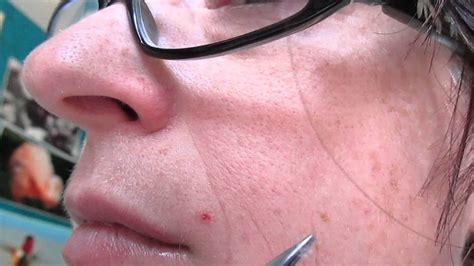 morgellons treatment peeling web  face youtube