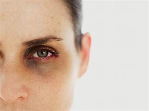Eye Care Tips : Cure Your Under Eye Dark Circles at home ...