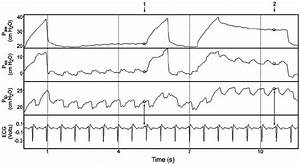 Influence Of Cardiac Artifact On Esophageal Pressure