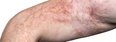 Scarborough Laser Surgery And Scar