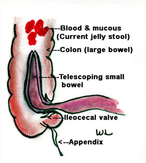 jelly type stool treatments for intussusception ehow uk