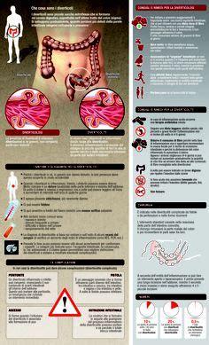 diverticolite dieta alimentare diverticolosi i consigli per prevenirla con la dieta
