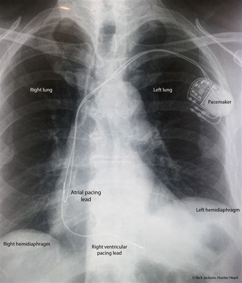 pacemaker chambre permanent pacemakers cardiology