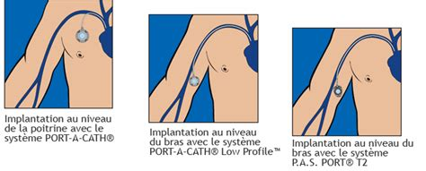 pac chambre implantable cliniiciens smiths