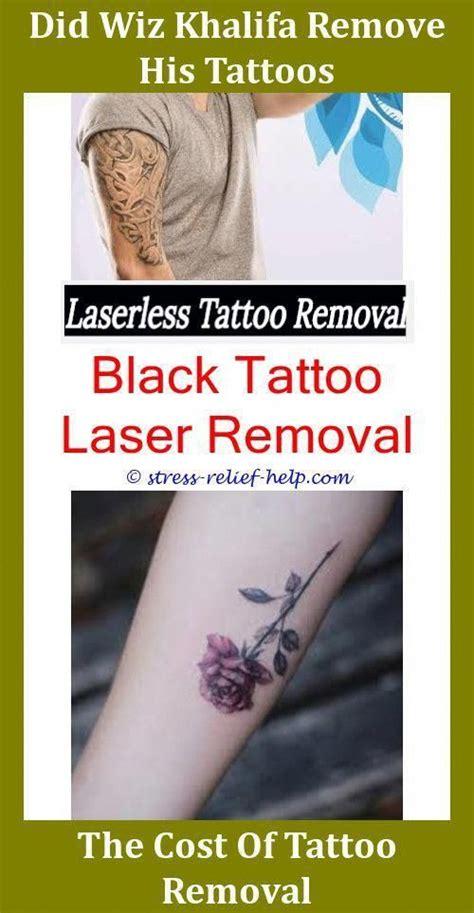 tattoo removal    bad  tattoo removal hurt
