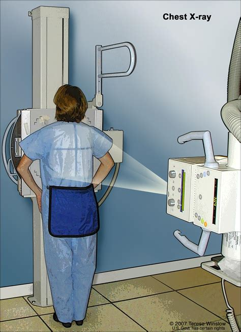 cancer body patient treatment pdq cardiopulmonary chest ray machine lung rays inside test areas check lungs breast abdomen through syndromes