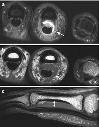 Imaging Rock Climbing Injuries Radiology Key