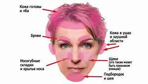 Как отличить псориаз от грибка кожи головы