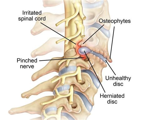 Cervical Spine Nerve Root Radiculopathy