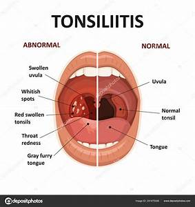 Tonsils And Throat Diseases  Tonsillitis Symptoms  Anatomy