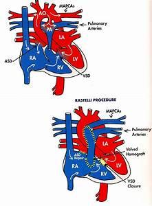 Pulmonary Atresia with Major Aortopulmonary Collateral ...