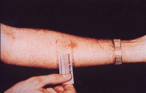 ppd tuberculin skin testing