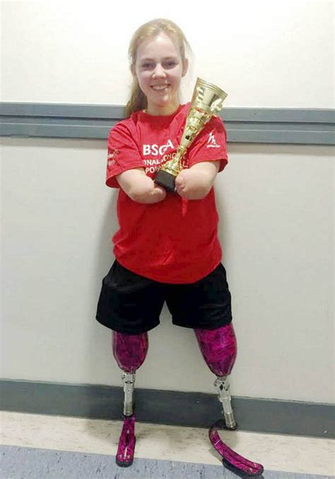 Girl wins trampolining championship after losing two limbs ...