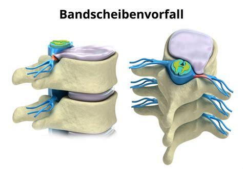 Rückenschmerzen  ein Volksleiden
