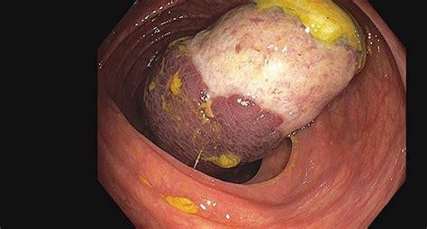 endoscopy campus endoskopische resektion von grossen