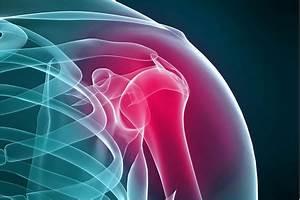 Как облегчить боль от артрита плечевого сустава