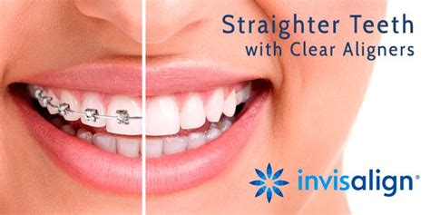 Finding the right dental plan for your needs can be overwhelming with so many options to choose from. Invisalign Clear Braces, Coquitlam, BC   Affordable braces, Dental braces, Orthodontics
