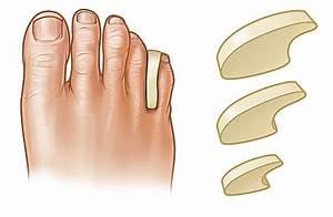 Как удалить у ребенка бородавку на пальце руки