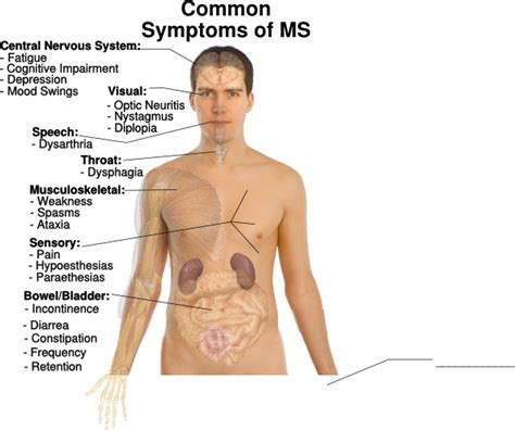 Common Symptoms Of Ms Clip Art At Clkerm  Vector Clip. Fire Ems Decals. Line Drawing Decals. Chakra Signs. Flags For Sale Online. German Style Lettering. Projector Wall Murals. Feature Murals. Discount Wall Prints