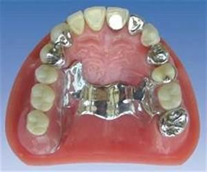 Pret proteze dentare la clinica stomatologica ProDent Clinic