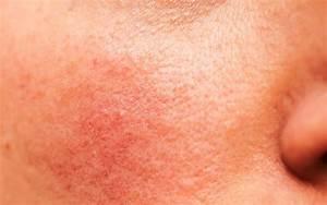 Skin Disease  Body Diseases Your Skin Reveals