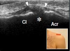 Sonographic Routine - Musculoskeletal Ultrasonography