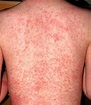 Home Remedies to Cure Prickly Heat Rashes – mygirlypedia