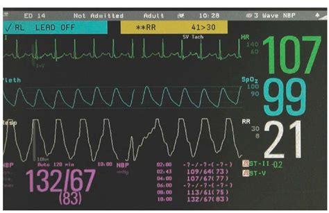 Ventilation (Clinical Essentials) (Paramedic Care) Part 3