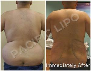 64 best Liposuction Results images on Pinterest ...