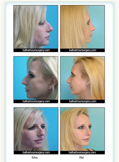 Rhinoplasty By Bal Harbour Plastic Surgery, Nose Surgery. Danny Wright Dozer And Pipeline. Massage School San Jose 0 Deposit Car Finance. House And Car Insurance Companies. Cheapest Packing Material Volvo C30 Insurance. Case Management Program African Safari Prices. What Is A Medical Administrative Assistant Salary. Freight Moving Services Greek Yogurt Industry. Plumbers Arlington Texas Startup Office Space