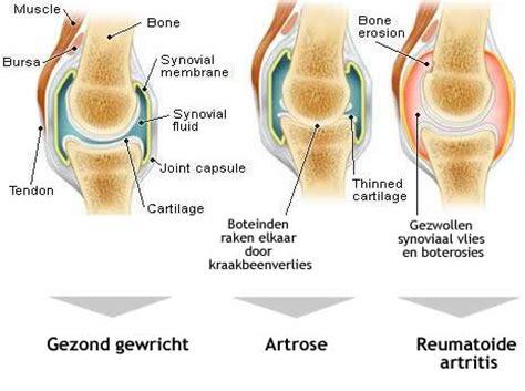 Artrose heup leeftijd
