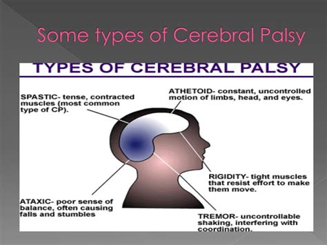 Ppt  Cerebral Palsy Powerpoint Presentation  Id5334403. Excellent Objective For Resume. Sample Of Informal Letter Example For Class 9. Work Resume For College Student Template. References Format On Resume Template. Moving Butterfly For Powerpoint. Letter To Shareholders Example Photo. Excel Label Template. Wedding Program Template For Microsoft Word Template