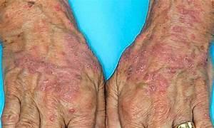 Гомеопатическое лечение псориаза