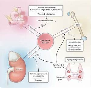 Calcium Homeostasis And Selected Causes Of Hypercalcemia