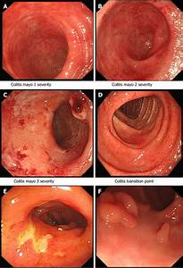 Common Endoscopic Findings In Patients With Inflammatory