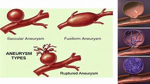 Aneurysm Coiling