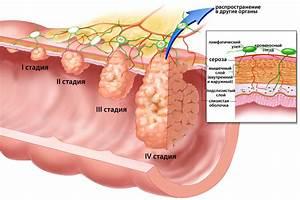 Какие препараты принимают при вирусе папилломы человека