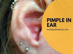 How To Get Rid Of A Pimple In Ear